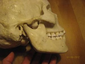 Kaebeled vist på kraniebillede